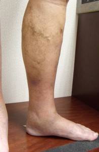 Hyperpigmentation and discolored skin on legs