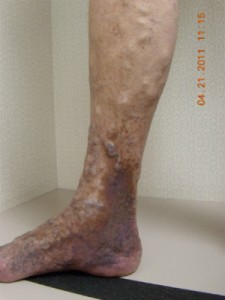 Venous Stasis Dermatitis