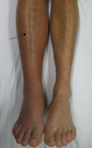 Leg Swelling is Not Normal