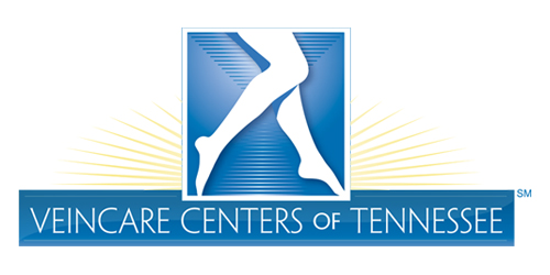 Edema (leg swelling) - Veincare Centers of Tennessee