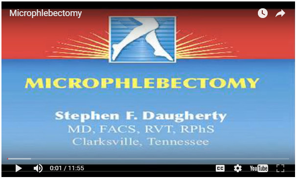 Microphlebectomy video