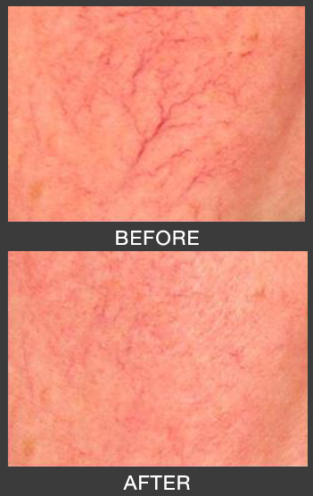 Get Rid of Spider Veins on the Face