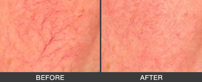 remove-spider-veins-on-the-face